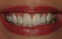 Gorgeous smile after cosmetic dentistry