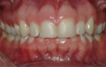 Short stubby top teeth before treatment