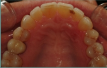 Inside of bottom teeth after dental restoration