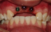 Missing bottom teeth with dental implant posts visible