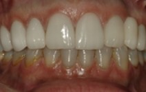 Healthy white smile after front top teeth are repaired