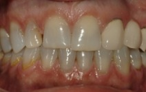 Discolored top front teeth