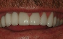 Row after top teeth are replaced