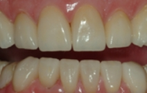 Healthy beautifully repaired smile after cosmetic and restorative dentistry