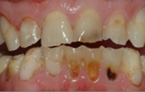 Severely decayed and broken top and bottom teeth