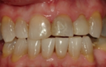 Damaged and discolored top tooth