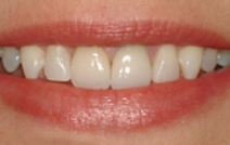 Beautiful smile after dental restoration is replaced