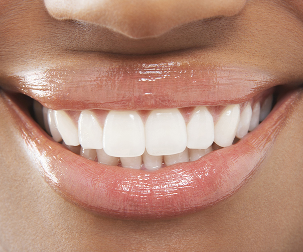 Closeup of smile after gum recontouring