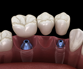 Animated dental implant supported fixed bridge placement