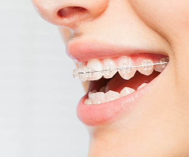 Closeup of smile with six month smiles clear braces